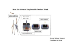 Implantable Device That Will Replace Injection Needles - Science