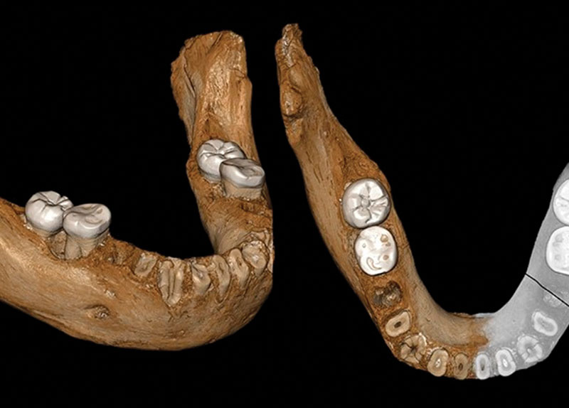 Jawbones Reveal the Origin of a Special Gene0