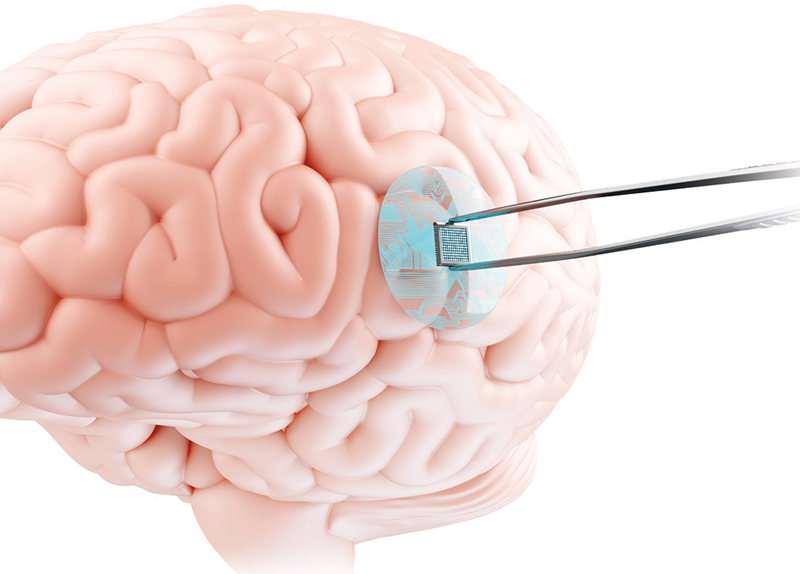 Microchip Brain Implants: Safe or Scary?0