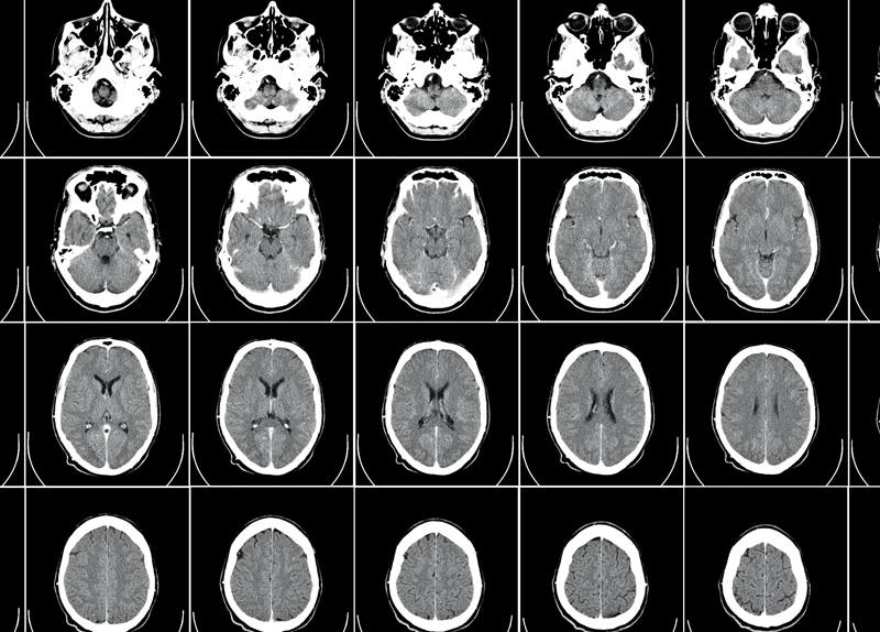What Lying Does to Your Brain