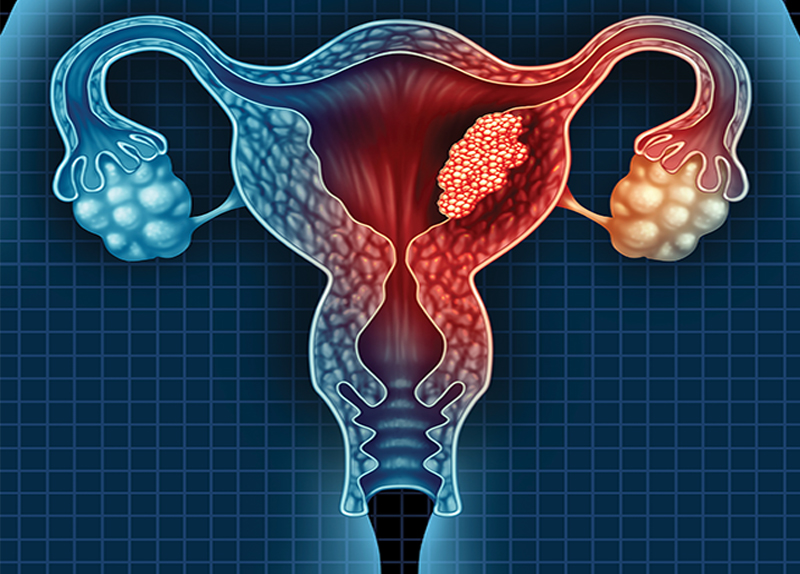 Australia To Eliminate Cervical Cancer0
