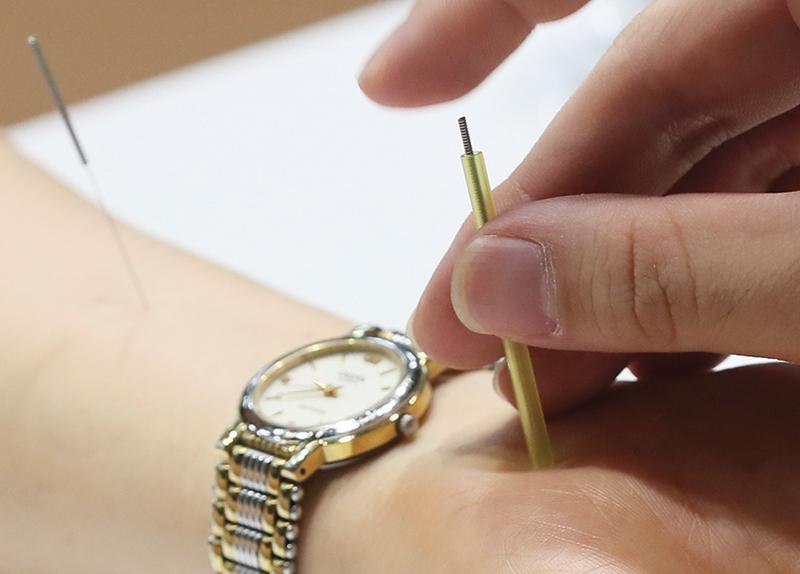 Acupuncture0